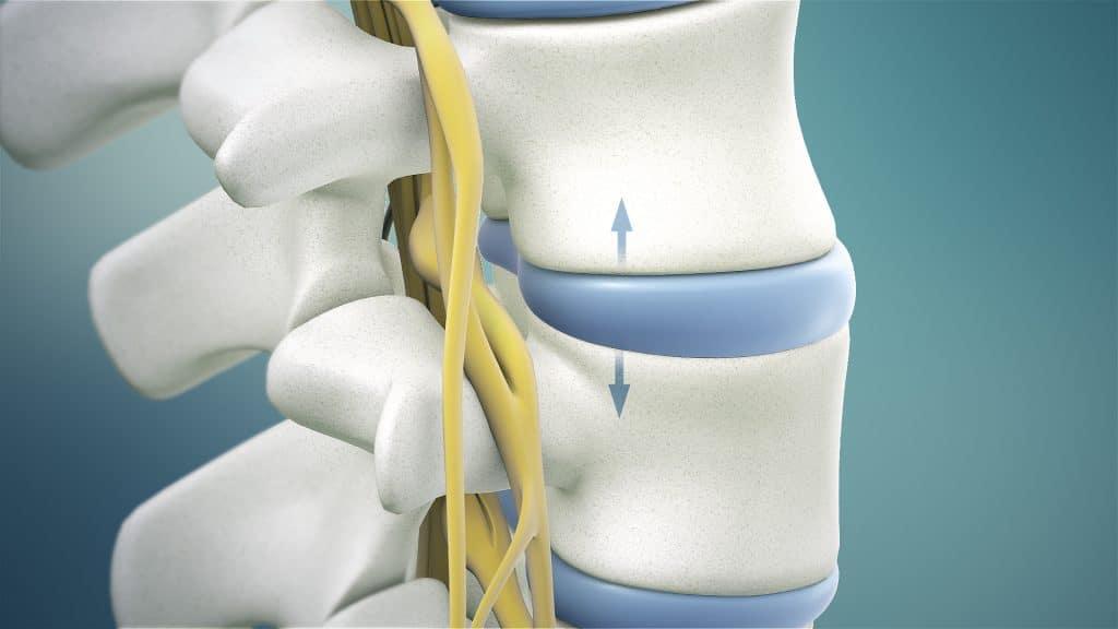Spinal Decompression Traction pulling vertebrae apart